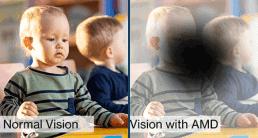 Visualisierung: Sicht mit AMD-Makuladegeneration